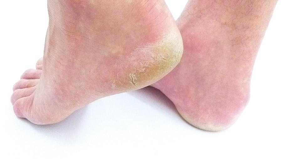 Fuß braucht fußpflege
