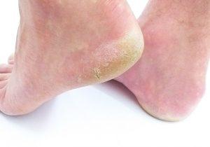 Grundpflege Fuß
